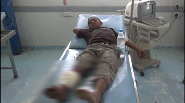إصابة طفل في أحدث انتهاك حوثي بحق المدنيين في الحديدة