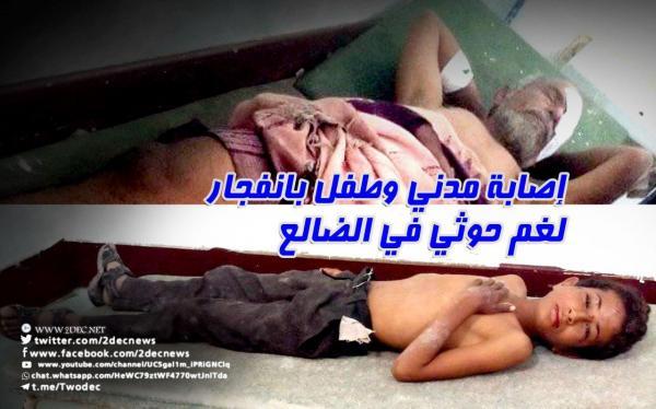 إصابة مدني وطفل بانفجار لغم حوثي في الضالع