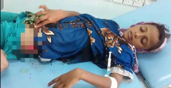 إصابة طفلة في قصف حوثي على منازل الجبلية في التحيتا